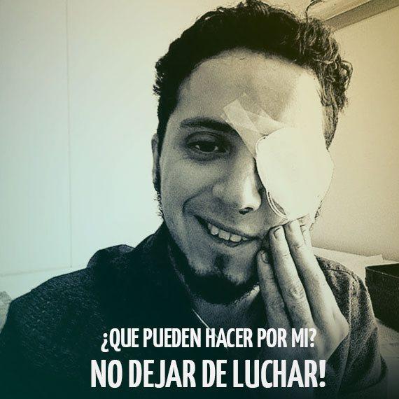 Diego Lastra (27), interno de 7mo año de medicina de la Universidad Diego Portales, perdió la visión de su ojo izquierdo luego de recibir el impacto de una bomba lacrimógena, según relatan los testigos. Foto: Facebook.