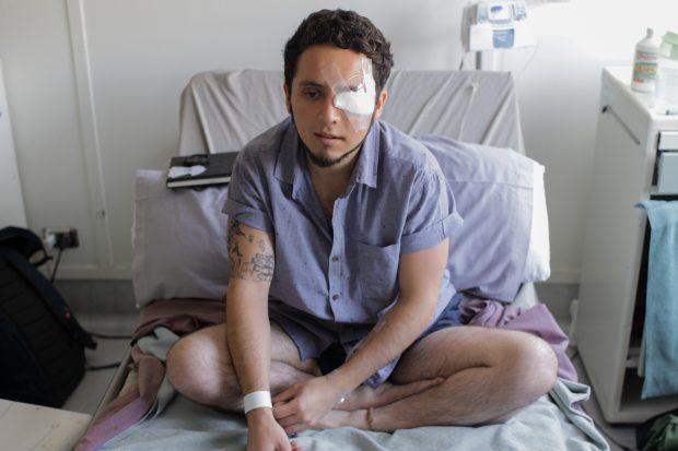 La madrugada del 1 de enero, Diego Lastra se convirtió en el primer mutilado del año 2020. Una bomba lacrimógena disparada por efectivos de Carabineros le causó tres fracturas en el rostro y el estallido de su globo ocular izquierdo. Cuenta que apenas sintió el el impacto supo que había perdido la vista. Así lo confirmaron los doctores tras la primera cirugía, en la que dieron cuenta del nivel del daño y, en una segunda, con placas de metal le reconstruyeron el pómulo, el párpado y lagrimal. Foto: Tomás González F.
