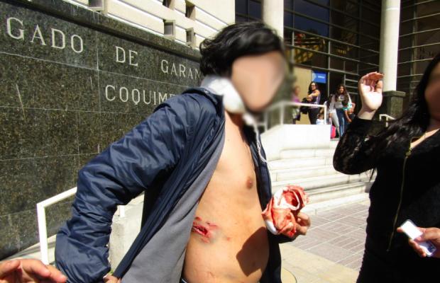 Así llegó Jonathan a la audiencia de control de detención al día siguiente de haber recibido un escopetazo en su espalda. La detención fue declarada ilegal y fue liberado. Foto: Radio Universidad de Chile.