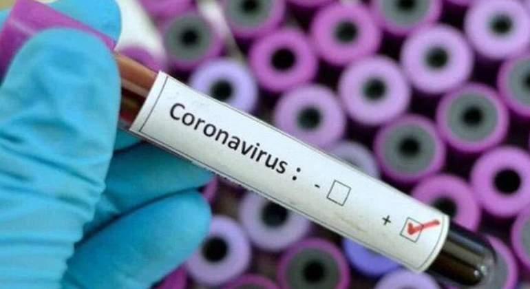 coronavirus-2-770-420